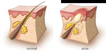 pele normal e com acne